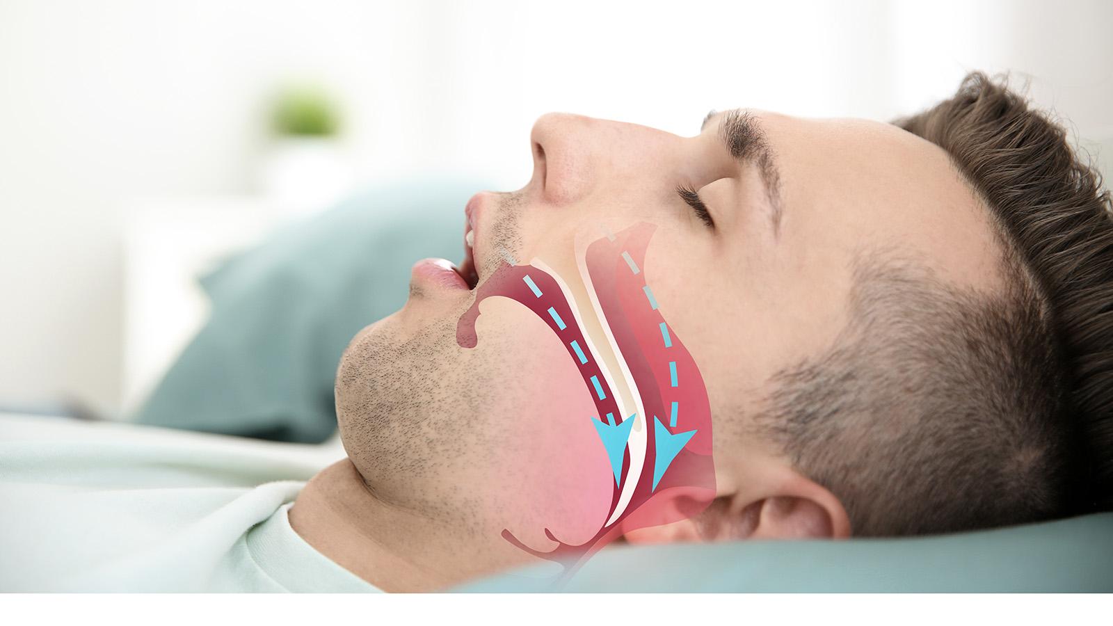 Atmung bei obstruktiver Schlafapnoe