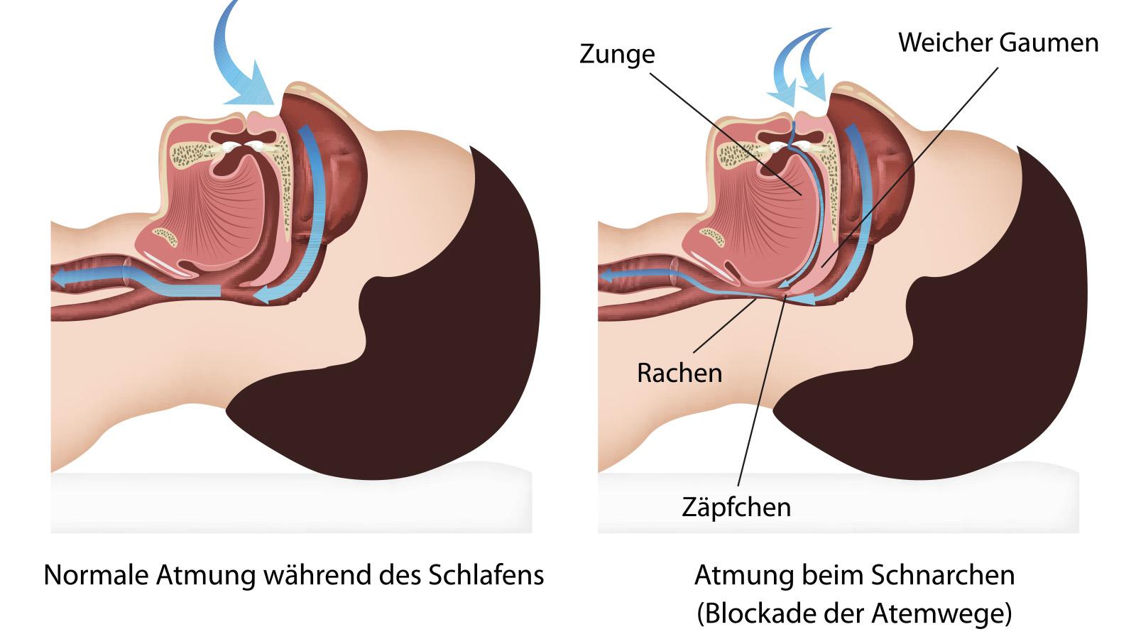 Symptom Schnarchen